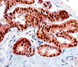 HER2 / ErbB2 & ER Alpha antibody