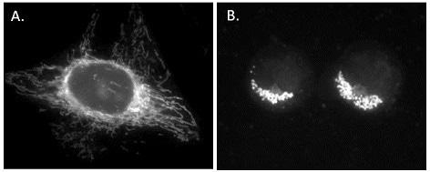 ab113852 mitochondrial membrane potential assay kit