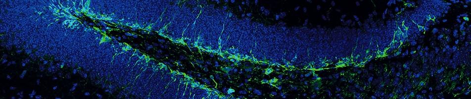 adult neurogenesis 952x200