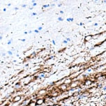 IHC stain of GIRK2
