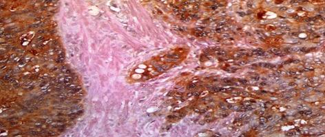 Hu-Colon-Cancer-RxMxM