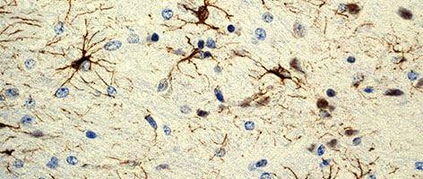 RabMAb 2301 1 GFAP mouse brain